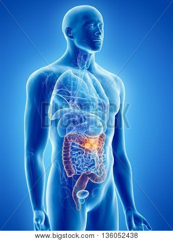 3d rendered, medically accurate illustration of bowel cancer