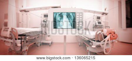 X-ray monitor in the panoramic ICU ward.