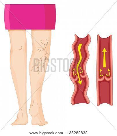 Varicose veins in human leg  illustration