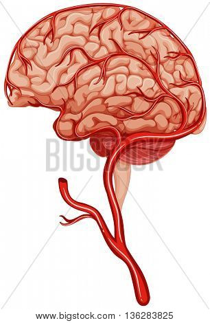 Blood clot in human brain illustration