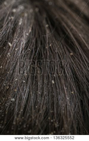 White Dandruff Flakes In Dry Hair On Head.