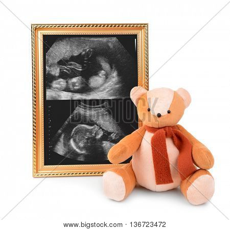 Frame with ultrasound scan of baby and bear toy isolated on white