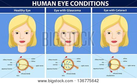Diagram showing human eye conditions illustration