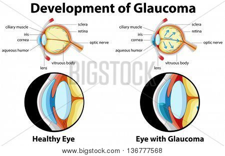 Diagram showing development of glaucoma illustration