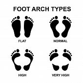 Foot arch types infographics. Set of flat foot high arch poster