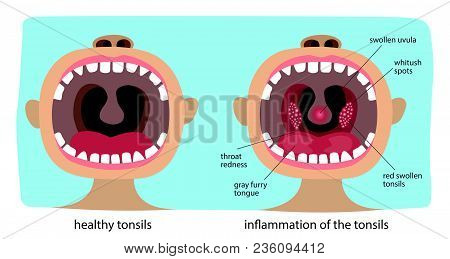 Poster Infographics Illustration Of A Healthy Throat Difference From Tonsillitis.