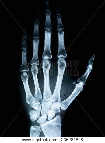 X-ray Of Human Hand. X-ray Image Concept.