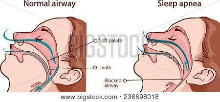Vector Illustration Of A Sleep Apnea Syndrome