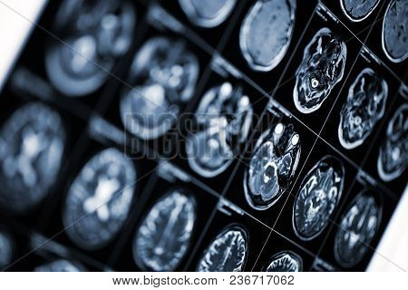 Medical Background With Mri Scan Image Of Human Head.