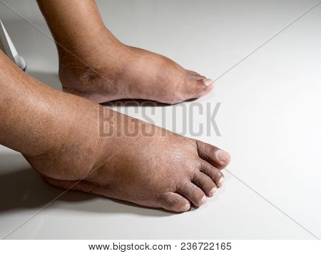 The Feet Of People With Diabetes, Dull And Swollen. Due To The Toxicity Of Diabetes Placed On A Whit