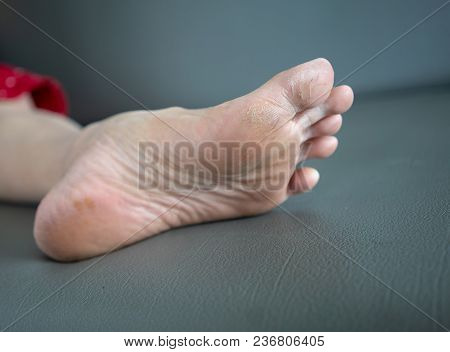 Foot Problem - Cracks On The Thumb Are Generally