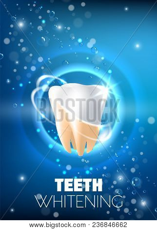 Teeth Whitening Concept Vector Realistic Illustration. Tooth Before And After Whitening Procedure On