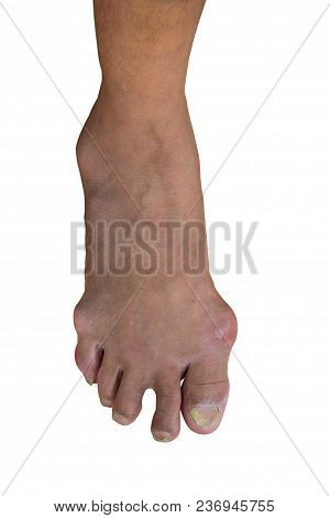 Foot Disease Or Gout Isolated Or White Background.