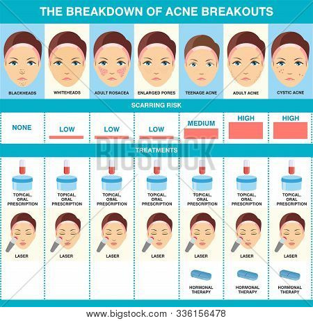 The Breakdown Of Acne Breakout. Types Of Acne. Skin Health Infographics.