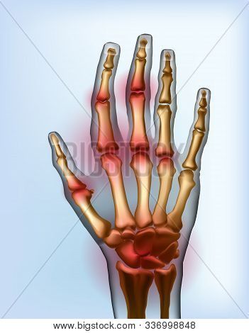 Frontal View Image Sore Osteoarthritis Joints Of Bones The Of Hand Isolated. Anatomy Of Joints With