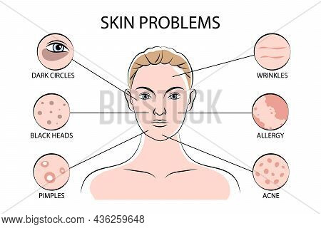 Skin Problems Infographics Scheme With Fixing Pimples Black Heads Wrinkles Acne Allergy Dark Circles