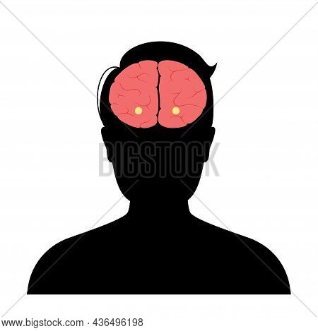 Amygdala And Limbic System Concept. Human Brain Anatomy In Male Silhouette. Cerebral Cortex And Cere