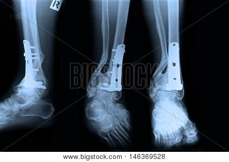 Ankle right joint : fracture ankle right joint