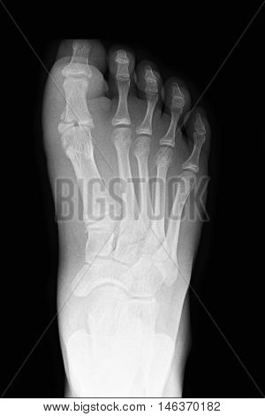 xray image show closed fracture index toe right foot