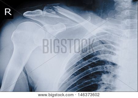 xray right shoulder show fracture shoulder right