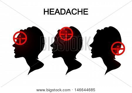 illustration of headache targets in women. migraine. head.