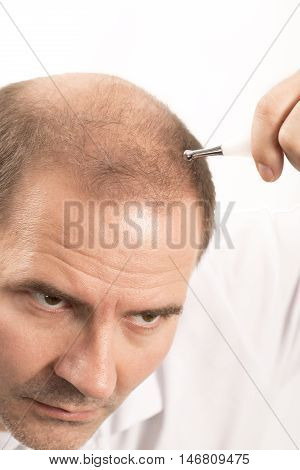 hair loss issue baldness alopecia black background poster