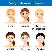 Skin problems and diseases. Acne rosacea vititligo and others. Vector illustration poster