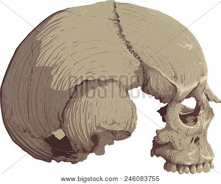 Human Skull Without The Lower Jaw In Profile On A White Painted Backgrounds Of Both Engraving