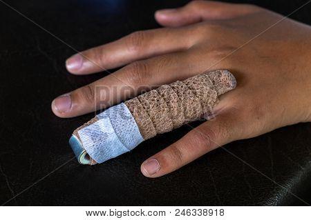Aluminium Finger Splint On A Woman Ring Finger, Treatment Of Finger Injuries.