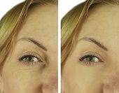 face woman wrinkles before and after lifting, antiaging poster