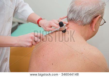 Orthopedic Surgeon Examining The Knee Reflex. The Doctor Checks The Physiological Reflex, The Test H