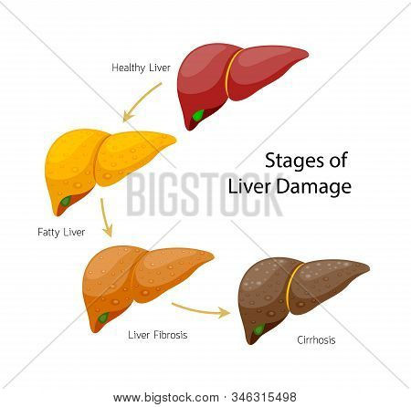 Stages Of Liver Damage. Liver Disease. Healthy, Fatty, Fibrosis And Cirrhosis. Info-graphic, Vector