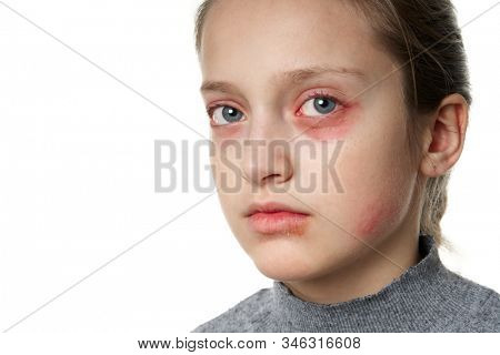 Allergic reaction, skin rash, close view portrait of a girl's face. Redness and inflammation of the skin in the eyes and lips. Immune system disease.