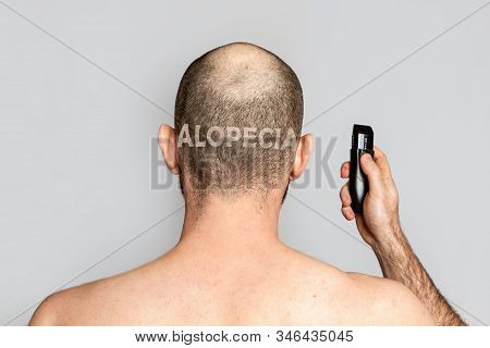 Male Alopecia. A Man With Thinning Hair Is Holding An Electric Razor. Rear View. Gray Background. Th