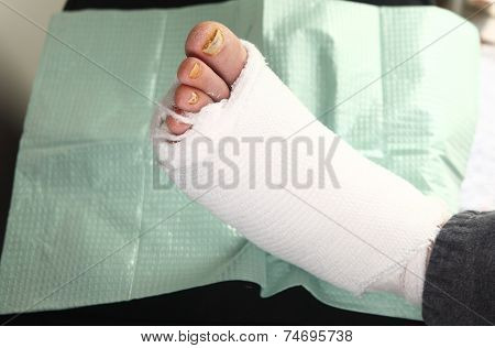 Diabetic man with foot infections