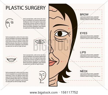 Cosmetic plastic facial surgery poster with infographic elements. Rhinoplasty, face lifting, blepharoplasty, eye and lip surgery, hair transplantation, cheek implants. Beauty care concept. Vector illustration eps10