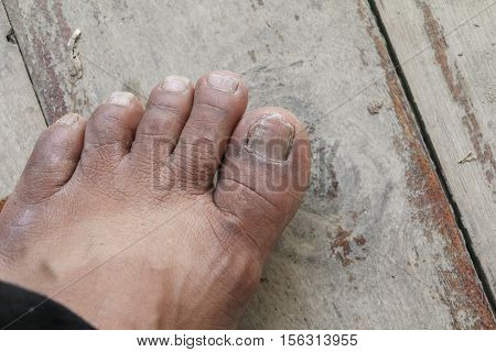 ingrown nail Big toe selective focus broken toenail on wooden floor background