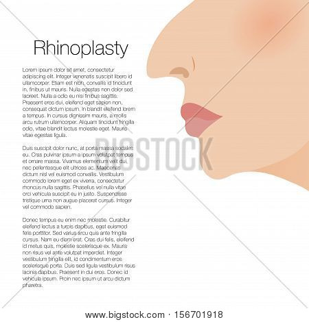 illustration of rhinoplasty flaer booklet for cosmetic surgery