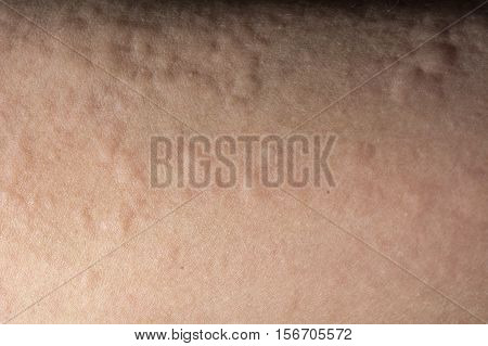 Close up of urticaria or allergy rash