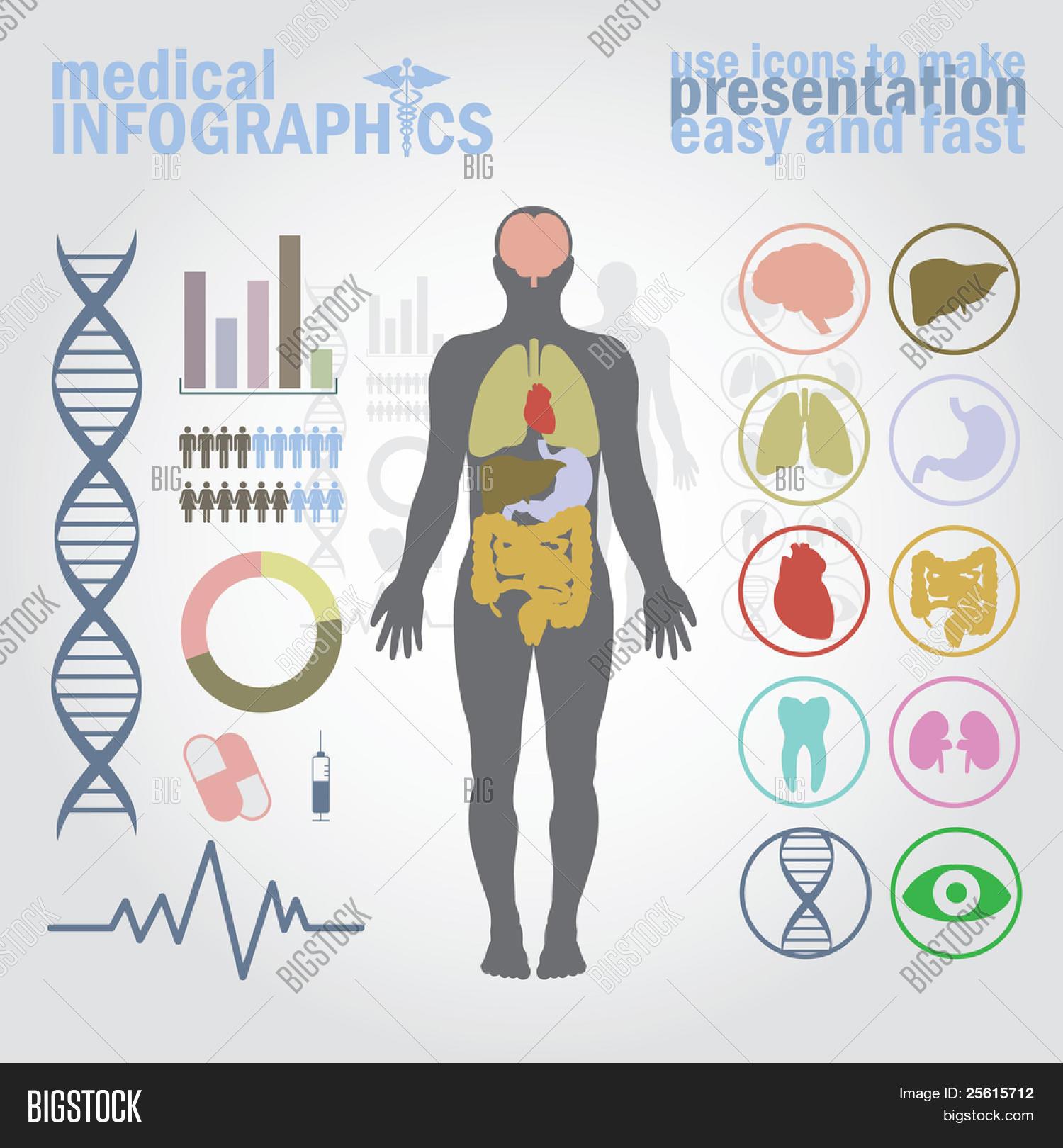 Vector y foto Infografí Médica (prueba gratis) | Bigstock