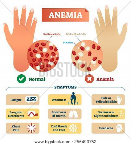 Anemia Vector Illustration. Medical Labeled Scheme With Problematic Red And White Blood Cells, And P