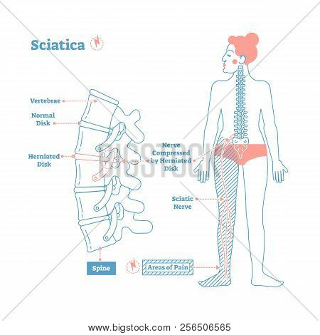 Sciatica Medical Health Care Vector Illustration Scheme With Lower Spine And Sciatic Nerve Pain In L