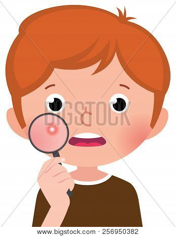 A Teenage Boy With A Problematic Skin Examines A Pimple Through A Magnifying Glass