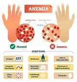 Anemia vector illustration. Medical labeled scheme with problematic red and white blood cells, and platelets. Microscopic diagram with disease diagnostic symptoms. poster