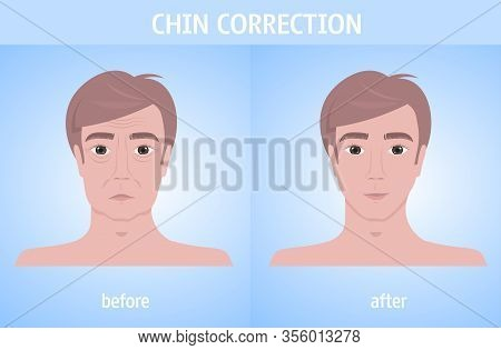 Man Face Before And After Chin Correction Facial Lift Reduction Treatment Skincare Removing Wrinkles