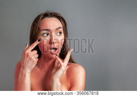 The Concept Of Sunburn. A Young Woman Points A Shocked Finger At A Face Reddened By Sunburn. Gray Ba