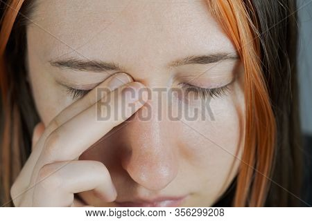 Touching Face With Hands, Concept Of Bringing Infection To Eyes. Woman Rubs Eyes With Fingers, Tired