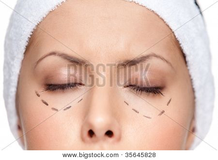 Facelift, isolated, white background, close up