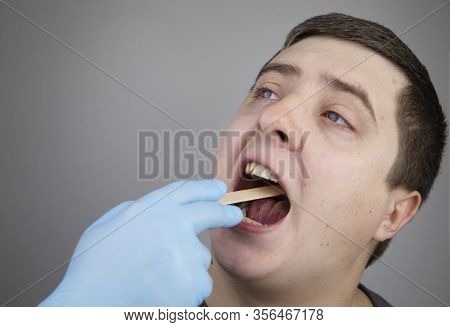 An Otolaryngologist Examines A Man's Throat With A Wooden Spatula. A Possible Diagnosis Is Inflammat