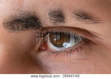 Scar On Eyebrow, Eyebrow Slit, Eyebrow Closeup, Stern Look